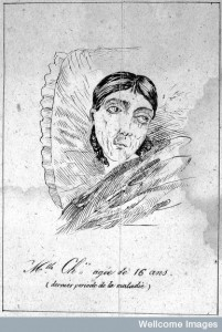 After masturbation. Mlle Chxx aged 16 years (1836). Credit: Wellcome Library, London.