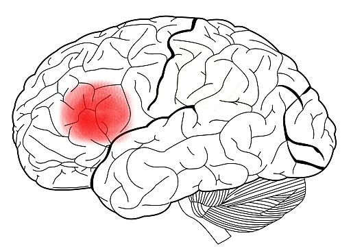 Broca's area, a region of the brain associated with occurrences of foreign accent syndrome.